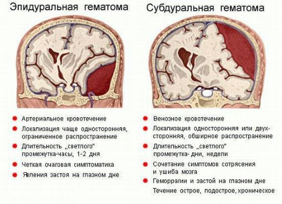 Эпидуральная и субдуральная гематомы