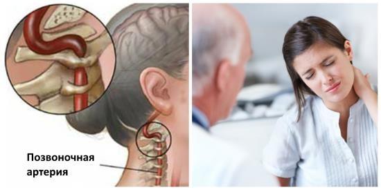 Синдром позвоночной артерии сопровождается мучительной головной болью