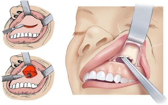 Хирургическая операция на верхнечелюстной пазухе