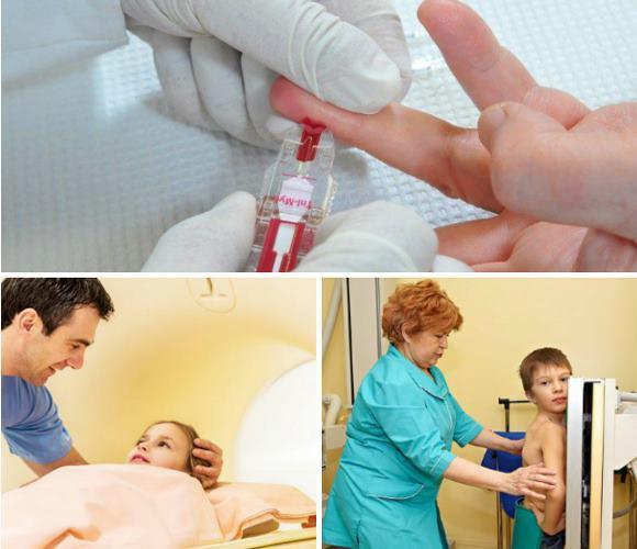 Общий анализ крови, МРТ и рентгенография легких