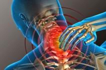Головная боль при остеохондрозе: все дело в мышцах