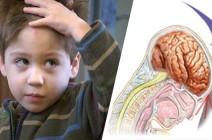 Головная боль вследствие травмы у взрослых и новорожденных детей