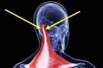 Почему возникает и как лечить боль в затылочной области головы