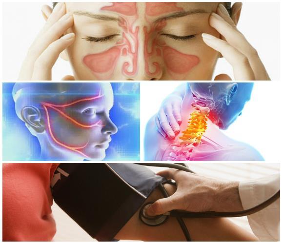Цефалгия может возникать при синуситах, невритах, гипертонии и остеохондрозе