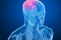 Причины, виды головных болей при раковой опухоли мозга
