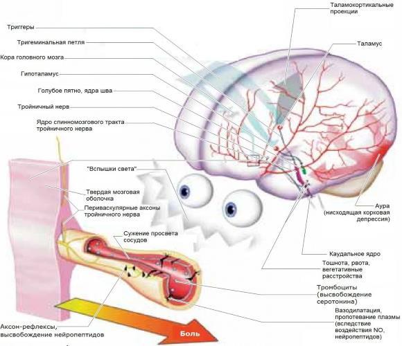 Механизм развития мигрени