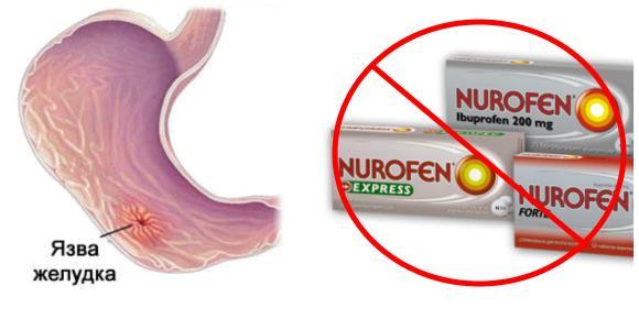 Нурофен нельзя принимать при эрозивно-язвенных заболеваниях органов желудочно-кишечного тракта в активной фазе