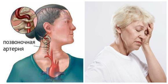 Шейная мигрень провоцируется сдавливанием нервов, которые окружают позвоночную артерию