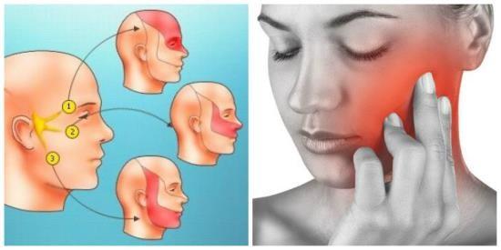 Приступообразные боли в зоне иннервации ветвей тройничного нерва