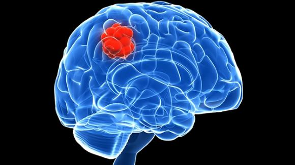 Новообразование мозга