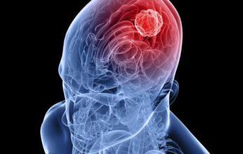 Головная боль: а вдруг опухоль мозга, что делать?