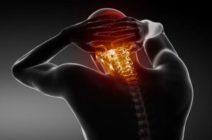 Головная боль и шейный остеохондроз: «друзья» или случайные попутчики?