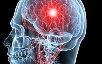 Головные боли при опухолях головного мозга – когда следует насторожиться?