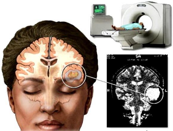 Опухоль головного мозга на компьютерной томограмме