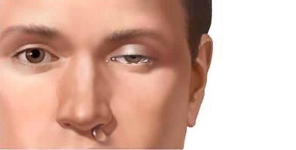 Боль локализуется с одной стороны, у виска или за глазом