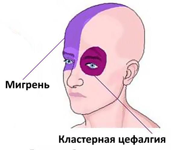 Отличия гемикрании и пучковой головной боли