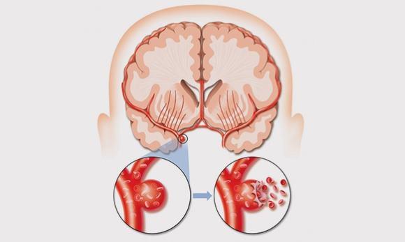 Разорвавшаяся аневризма сосуда головного мозга