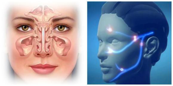 Головная боль может быть признаком синусита и невралгии тройничного нерва
