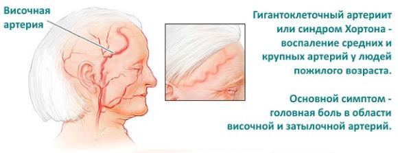 Синдром Хортона