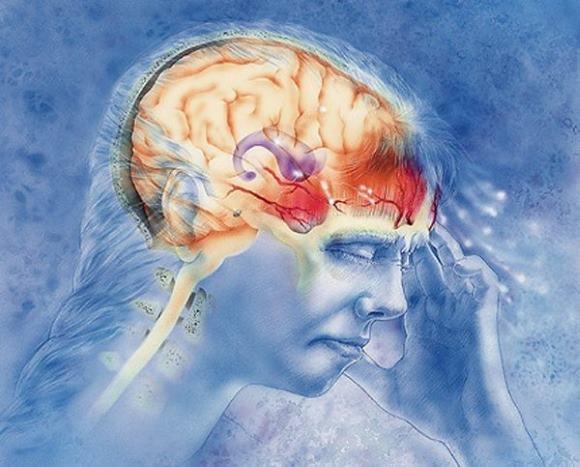 Головная боль при мигрени вызвана расширением кровеносных сосудов