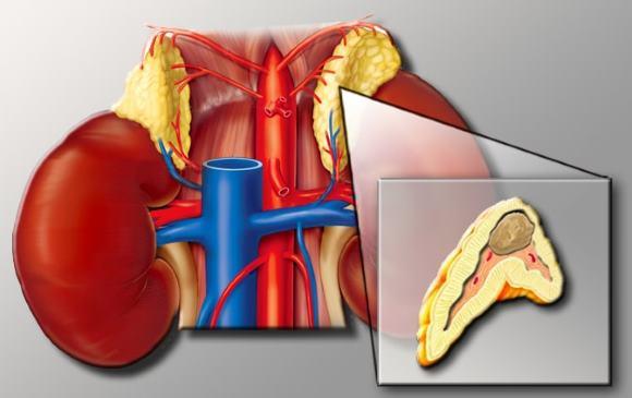 Кризы при феохромоцитоме сопровождаются головной болью, тошнотой и другими симптомами