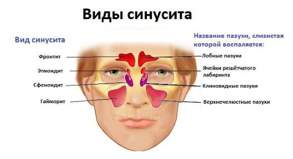 Чаще головная боль при синусите имеет локализованный характер и концентрируется в лобной или височной долях