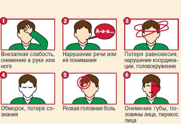 Симптомы ОНМК
