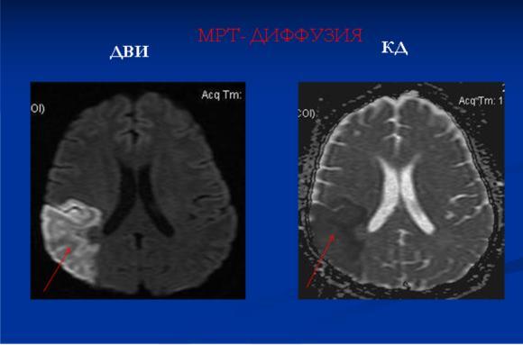 МРТ с получением диффузионно-взвешенных изображений