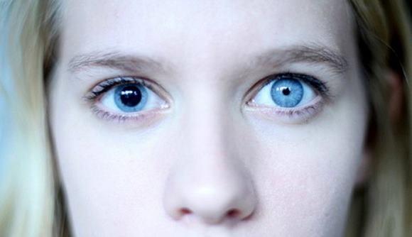Анизокория - это симптом, характеризующийся разным размером зрачков