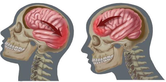Сотрясение мозга — легкая форма черепно-мозговой травмы