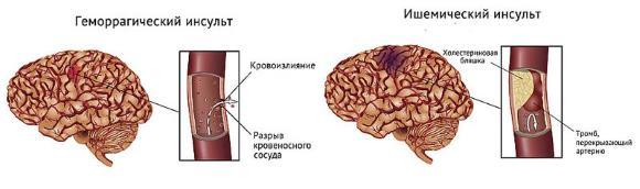 Острое нарушение мозгового кровообращения (ОНМК)