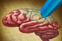 Инсульт в детском возрасте — миф или жестокая реальность
