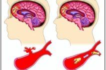 Как отличить геморрагический инсульт от ишемического?