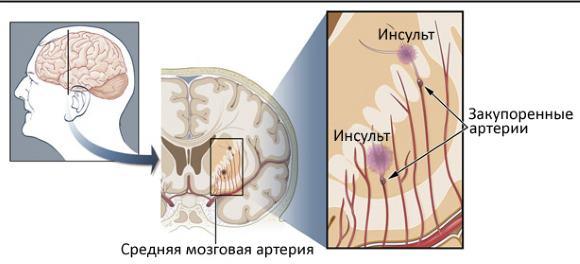 Ишемический лакунарный инсульт