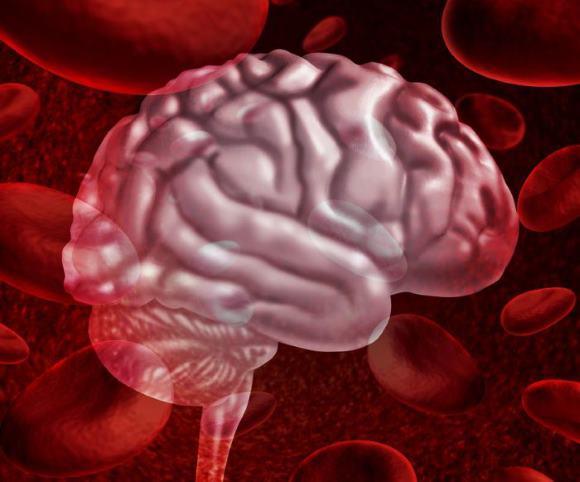 САК - это внезапно возникающее кровотечение в субарахноидальное пространство