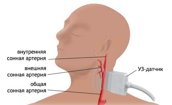 УЗ-сканирование сонной артерии