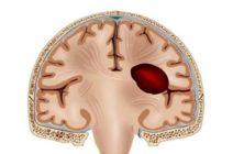 Мозговая гематома у новорожденных детей – причины и последствия