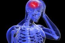 Обширное нарушение мозгового кровообращения: причины, симптомы, лечение и последствия