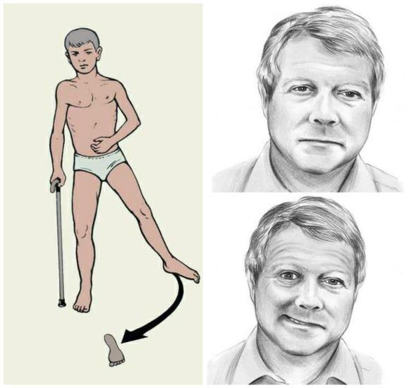 Асимметрия лица и характерная поза после инсульта