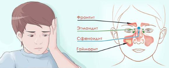 Один из симптомов синусита- головная боль