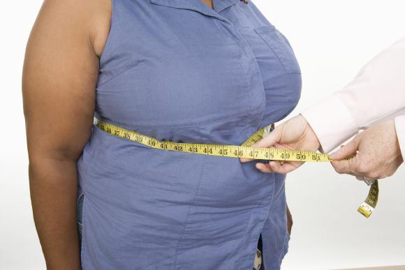 Женщине, страдающей абдоминальным ожирением, грозит инсульт