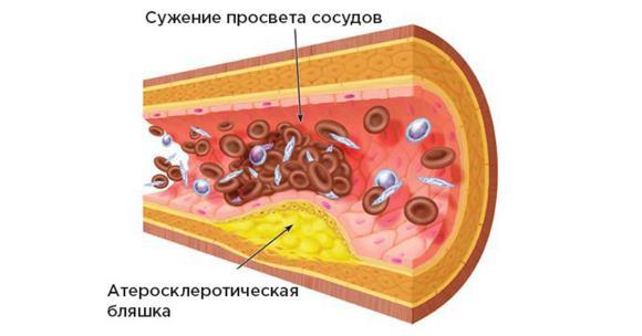 Стеноз сосуда головного мозга