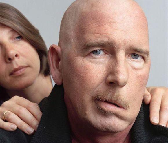 Асимметрия лица – один из симптомов инсульта