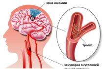 Роль артериального давления в развитии инфаркта мозга