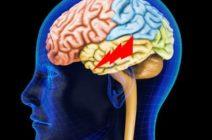 Симптомы и последствия инсульта височных долей