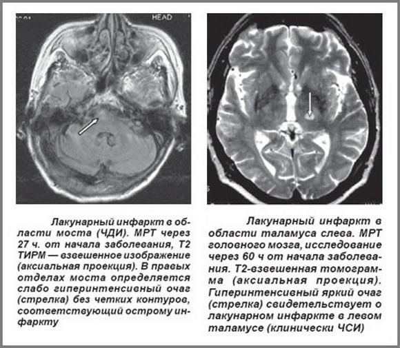 МРТ при ОНМК по ишемическому типу