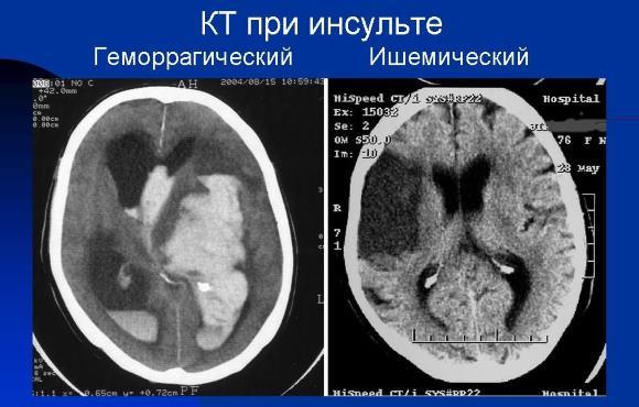 КТ позволяет исключить состояния, имитирующие инсульт