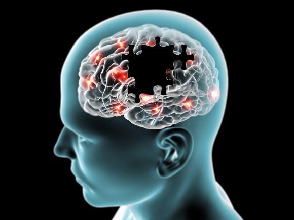 Инсульт - одна из важнейших проблем общественного здоровья