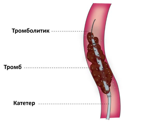 Лизиса тромба внутри сосуда
