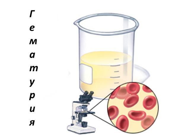 Микрогематурия